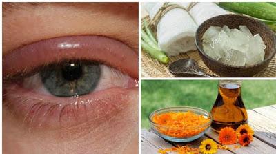Soigner les infections des yeux avec un remède naturel
