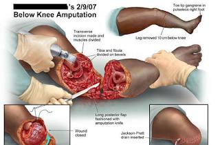 amputasi-www.healthnote25.com