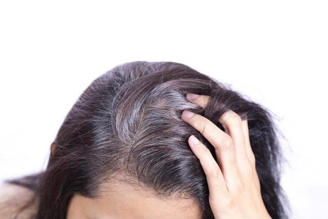 Những nguyên nhân làm tóc bạc sớm ở giới trẻ hiện nay 1