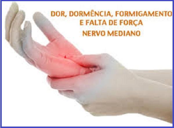 Dor, dormência,formigamento e falta de força no nervo mediano - Síndrome do Túnel do Carpo (Vico Massagista - São José SC)
