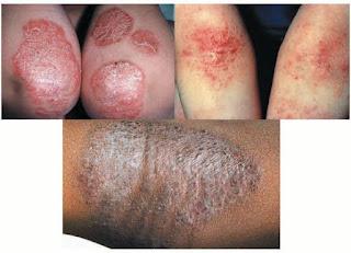 Gatal di paha bagian dalam karena penyakit eksim kering dan basah