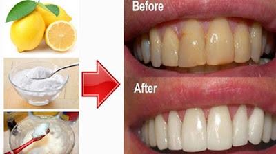 cara mudah untuk membuat gigi menjadi lebih putih