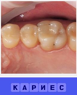 кариес зубов в открытом рту человека