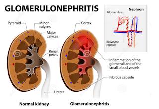 Perbedaan ginjal normal dan ginjal glomerulonefritis