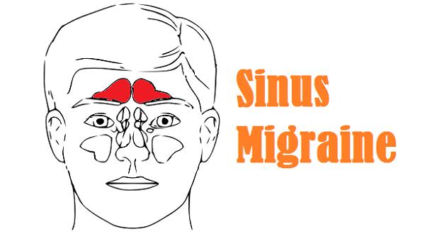 Sinus Migraine