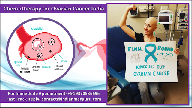 Chemotherapy for Ovarian Cancer in India