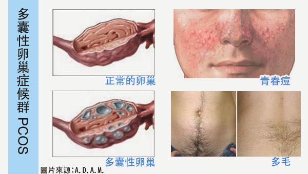 多囊性卵巢症候群pcos