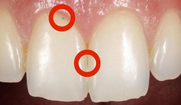 Όταν είδε ο οδοντίατρος τα Ούλα της, δεν πίστευε στα Μάτια του! Προσέξτε μην είναι και στα Δικά σας!