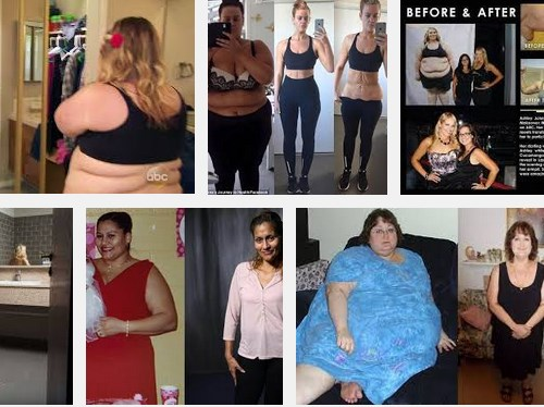 Fastweightloss How To Achieve Extreme Weight Loss Without Surgery