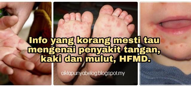 Info yang korang mesti tau mengenai penyakit tangan, kaki dan mulut, HFMD.