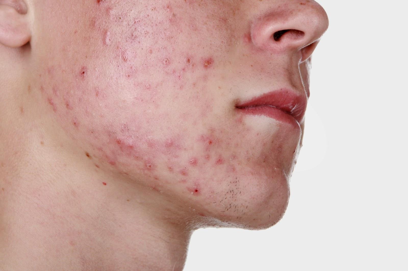 Чем лечить акне на щеках