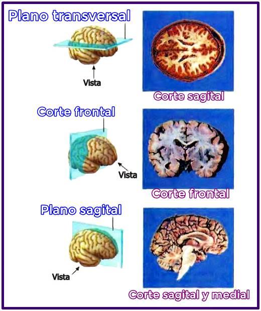 Planos anatómicos representados en el cerebro