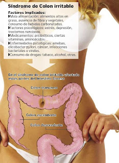 sindrome-colon-irritable