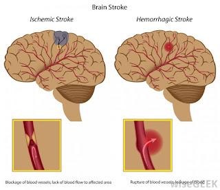 Obat stroke bagian kiri