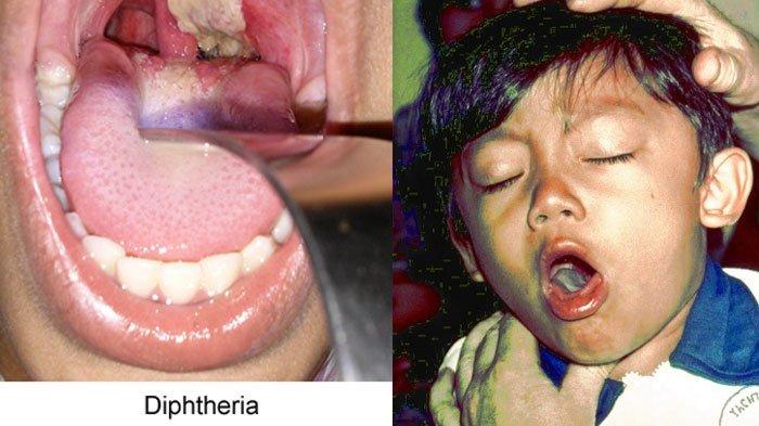 Tanggap Wabah Difteri Bisa Berujung Gagal Jantung Hingga Kerusakan Syaraf Fatal....