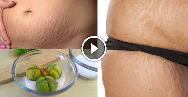 This Simple Lemon Trick Will Help You To Remove The Stretch Marks Of Abdomen And Thighs
