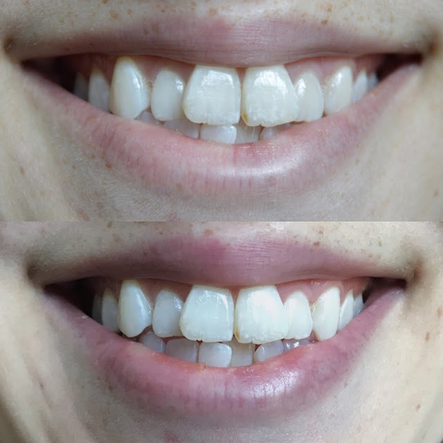 Smile Brilliant Teeth Whitening At Home Review
