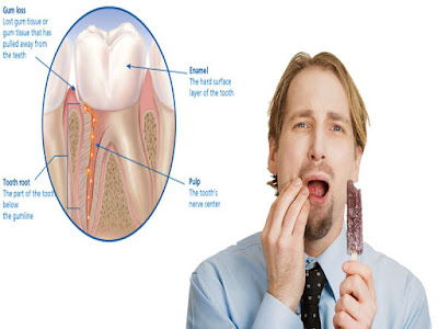 treatment for sensitivity of dental