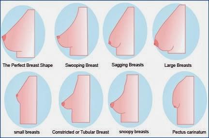 Torpedo shaped boobs