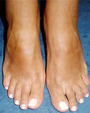 Foto de pies femeninos