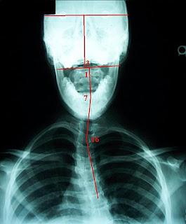 脊椎側彎, 脊椎側彎矯正, 脊椎側彎治療,脊椎側彎物理治療