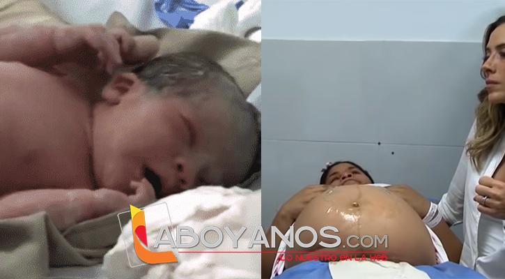 El extraño caso de una bebé embarazada de su gemelo