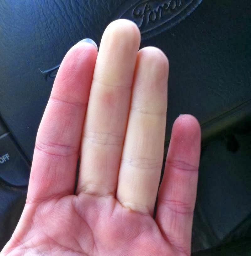 manos frías e impotencia