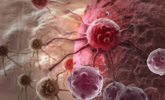 Melawan kanker stadium lanjut