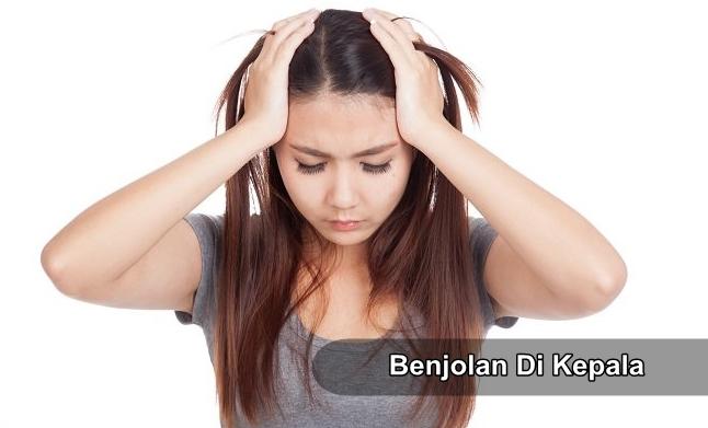 Cara Menghilangkan Benjolan di Kepala