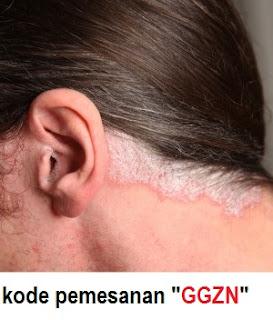 cara mengobati kulit kepala bersisik secara Alami