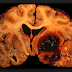 Cryptogenic Stroke Symptoms, Causes, Recurrence rates, Treatment