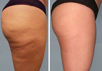 Cellulite: méthode douce et sûre