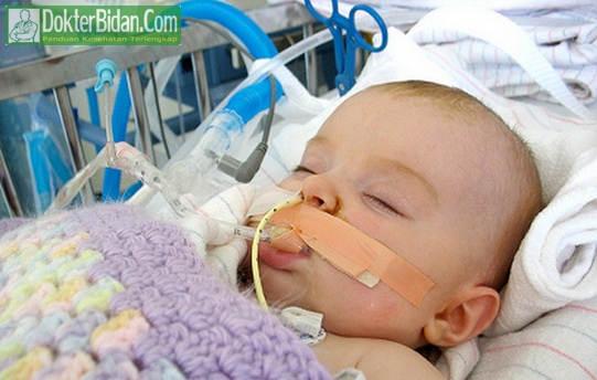 Botulisme Keracunan Kronis - Penyebab Gejala Pengobatan dan Pencegahanya