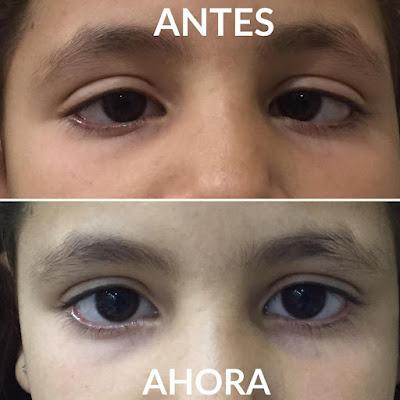imagen de niña con estrabismo antes y después