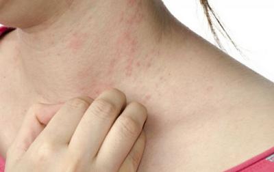 Gel naturel Stop bouton & la dermatite atopique