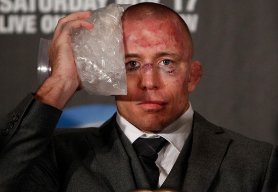 Funny faces of MMA   Sherdog Forums   UFC  MMA   Boxing Discussion   IMG