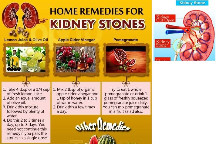 homeostatic imbalance in kidney stones Explore sar h's board the role of the kidneys in homeostasis on pinterest  helps prevent the development of kidney stones, helps deter cancer, is very.