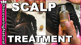 Scalp Treatment for Hair Growth | DiscoveringNatural