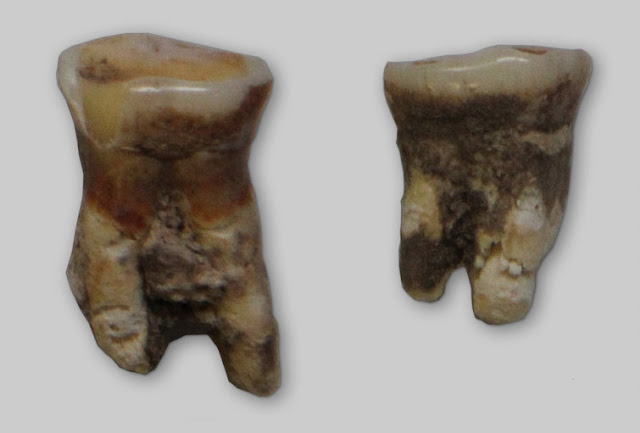 Ancient tooth shows Mesolithic ancestors were fish and plant eaters