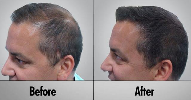 7 remèdes maison pour la perte de cheveux