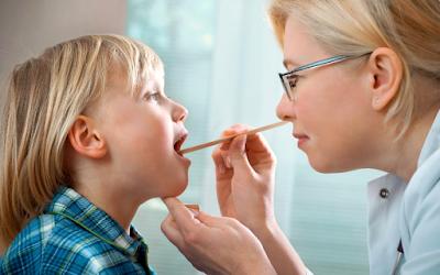 Cara Mengatasi Amandel Pada Anak Dan Orang Dewasa Yang Kambuh Dengan Cepat