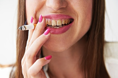 Cara Menghilangkan Kerak Gigi yang Membandel Sudah Lama Akibat Rokok