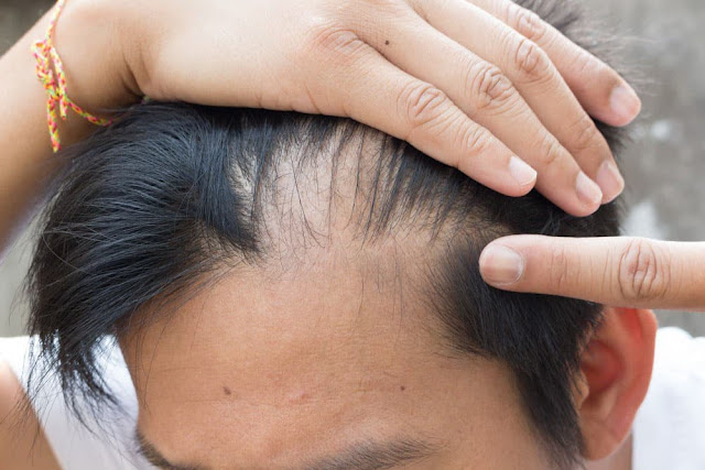 Causes and Solution for Hair Loss - Men and Women