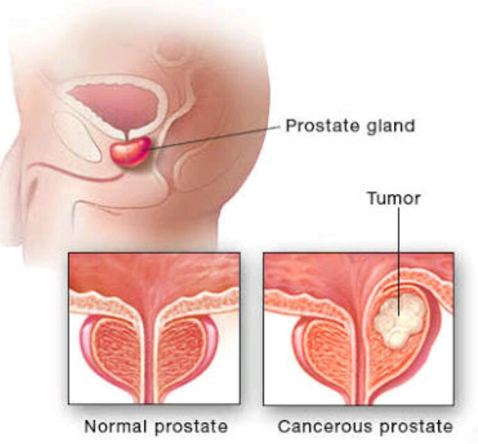 Causes of prostate cancer no sex