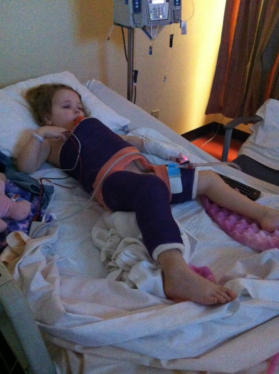 Abbys Bilateral Hip Dysplasia Story