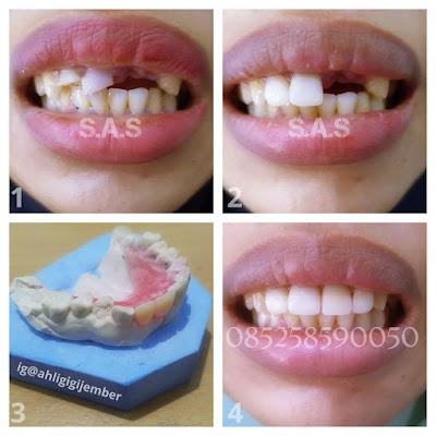 Pasang gigi tambal gigi veneer gigi cantik senyum indah