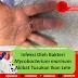 Studi Kasus Mikrobiologi: Pria Berusia 51 Tahun dengan Pembengkakan di Jarinya