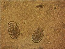 fotos de parásitos en heces humanas