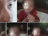 Mata Anak Ini berdarah, Diduga akibat Sering Main Gadget