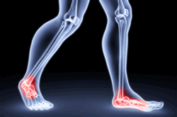 x-ray of legs